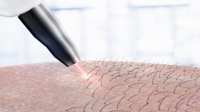 Photo of Everything You Should Know About Laser Hair Removal Before Getting It