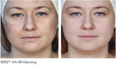 Photo of Benefits of no needle mesotherapy machines for spa owners