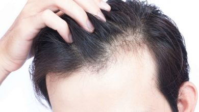 Photo of The relationship between Diabetes and Hair loss
