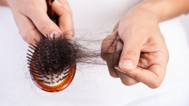 Photo of Baldness: The Causes, Treatment and Remedies that must know
